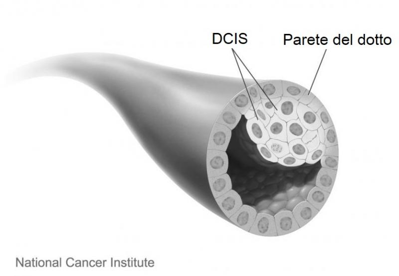 Carcinoma duttale in situ (DCIS). Fonte immagine: Don Bliss, National Cancer Institute